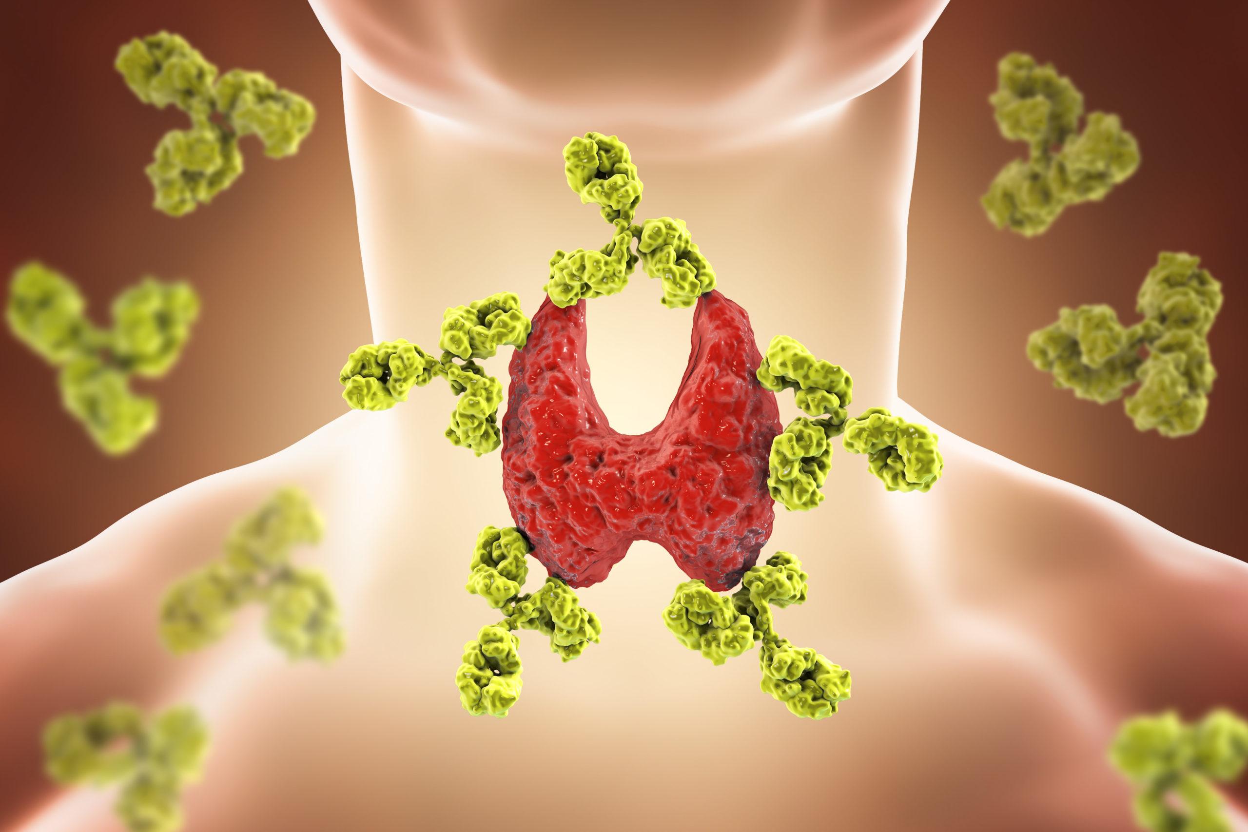 Choroba Hashimoto - diagnostyka